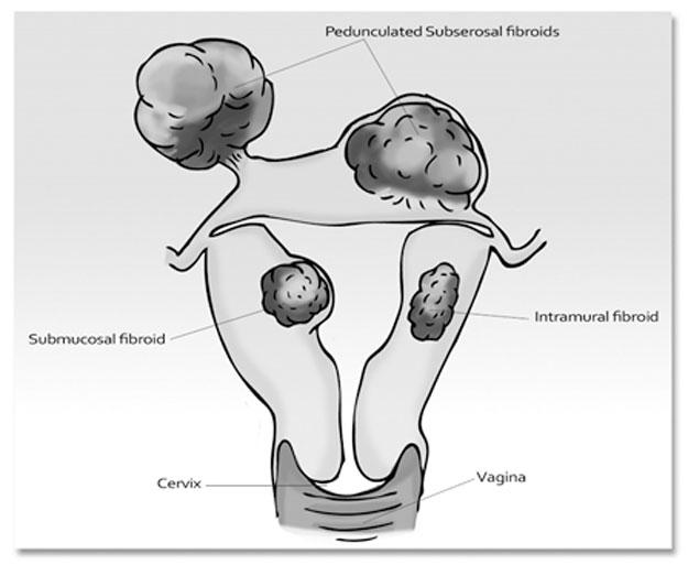 Fibroids – Uterine Myoma & Endometrial Polyps